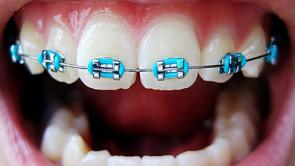 Apparecchi dentali fai da te, la nuova tendenza online